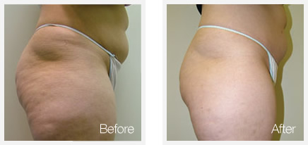 circumferential reduction before and after