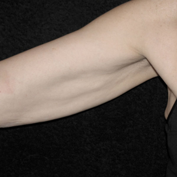 Collagen Stimulation Therapy Arms After