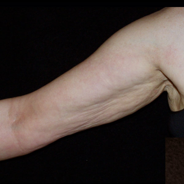 Collagen Stimulation Therapy Arms Before