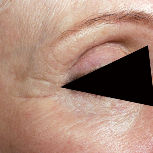 Collagen Stimulation Therapy Eyes After