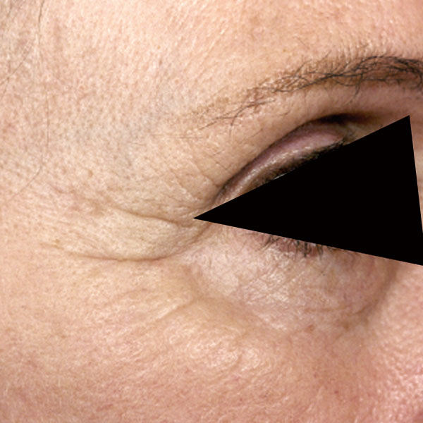 Collagen Stimulation Therapy Eyes Before