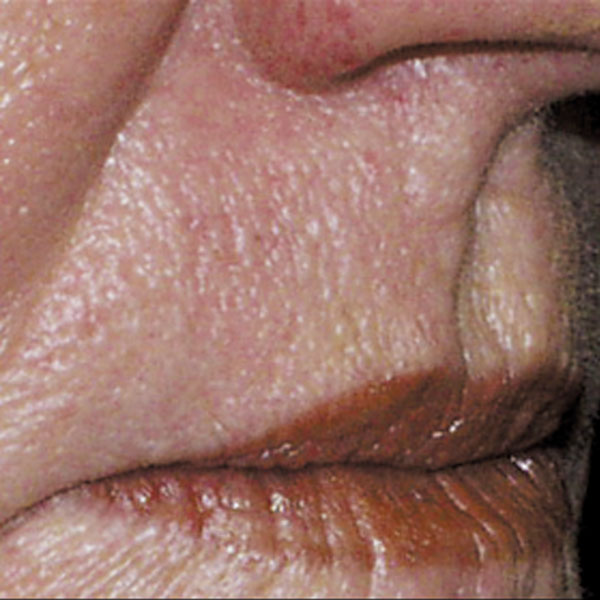 Collagen Stimulation Therapy Mouth After