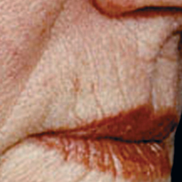 Collagen Stimulation Therapy Mouth Before