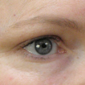 Dermaroller Eyes Results After