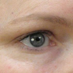 Dermaroller Eyes Results After