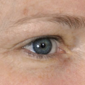 Dermaroller Eyes Results Before