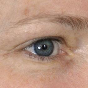 Dermaroller Eyes Results Before