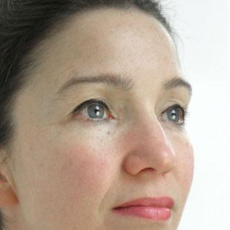 Dermaroller Face Results After