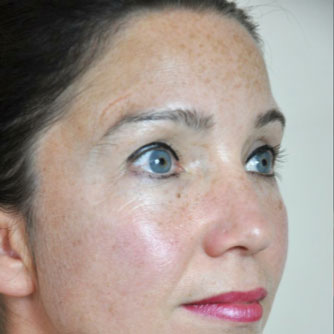 Dermaroller Face Results Before