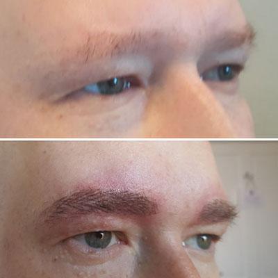 eyebrow alopecia