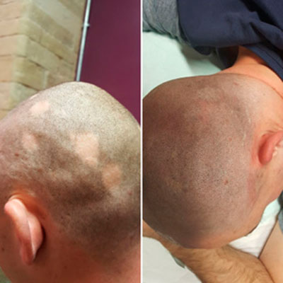 scalp micropigmentation sheffield